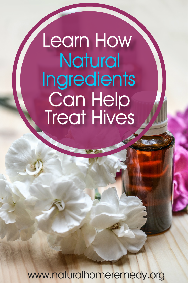 How To Get Rid Of Hives Fast At Home