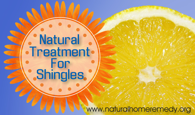 Natural Remedy For Shingles