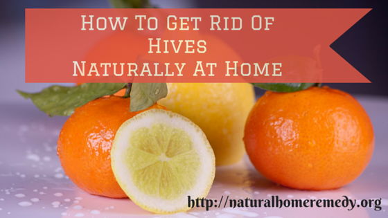 hives treatment home remedies