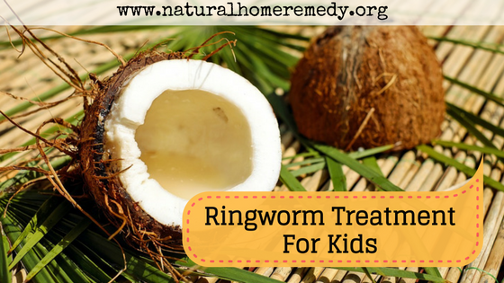 Ringworm Treatment For Kids That Work