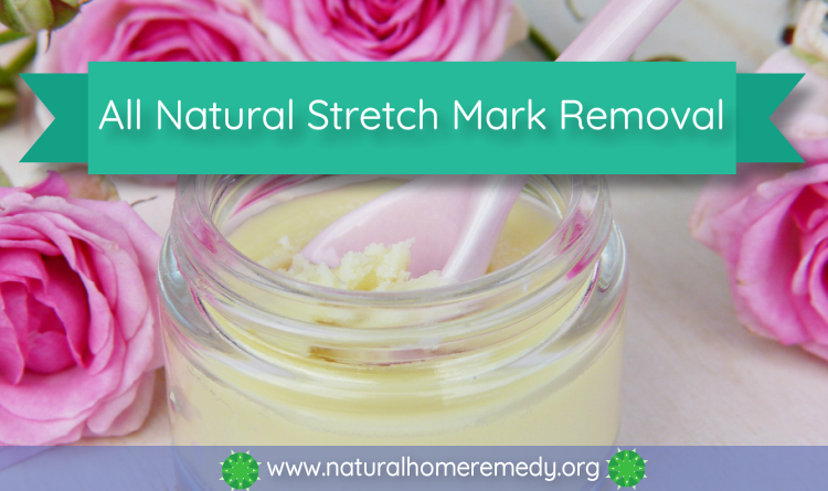 stretch mark home remedy