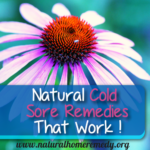 Natural Cold Sore Remedies That Work