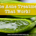 acne natural home treatments