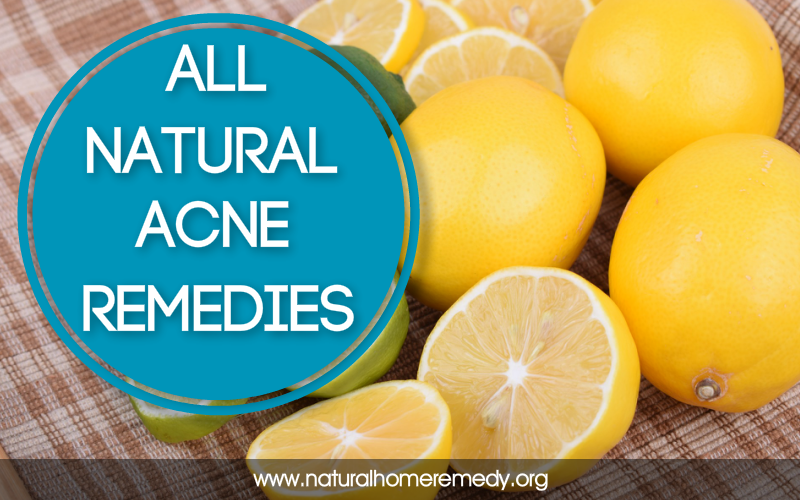 home acne treatments that work