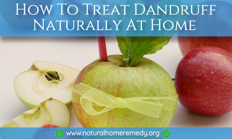 dandruff home remedy